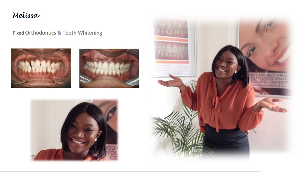 tooth implant kent