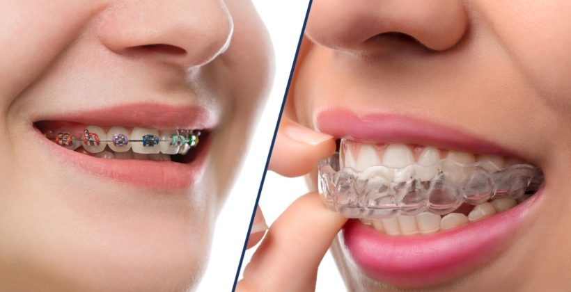 Invisalign vs Braces, The Best Competition all around: