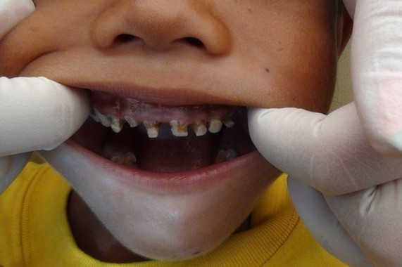 Causes of the tooth decay