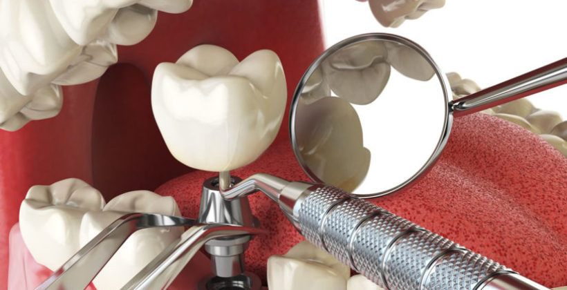What are Tooth implants?